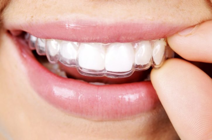 After Care Guide One Should Know About the Invisalign Treatment